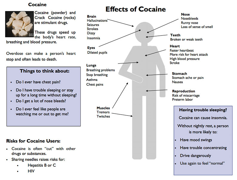 Cocaine use whether you have never tried cocaine, want to quit cocaine or recently stopped using cocaine